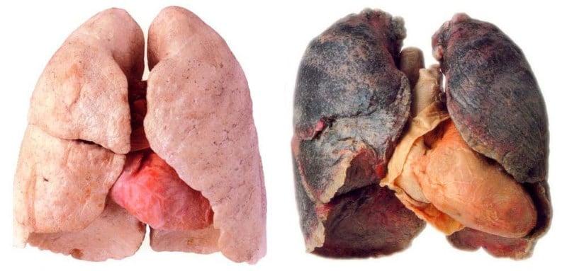 легкие курильщика и здорового: до и после