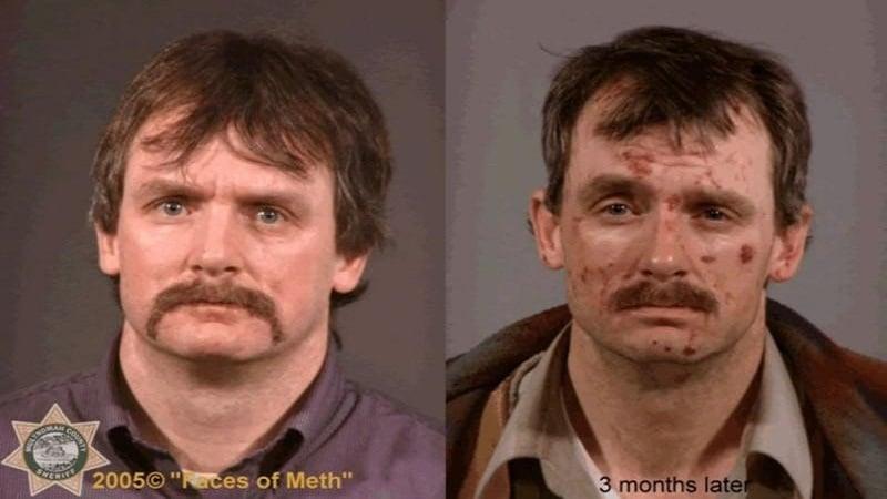 последствия амфитаминовой зависимости фото