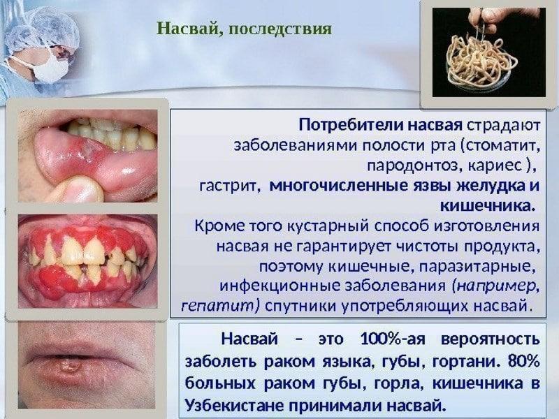 запах изо рта повышенное слюноотделение