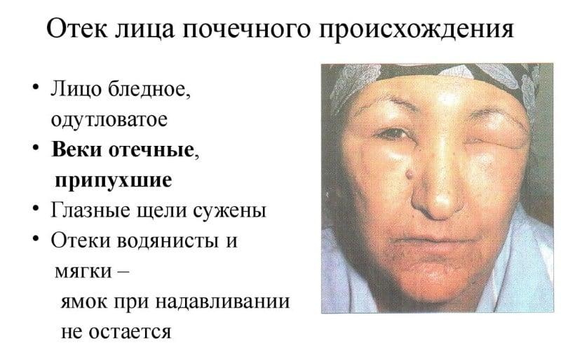 аллергия на медикаменты симптомы фото