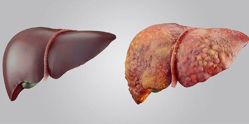 симптомы цирроза печени у мужчин