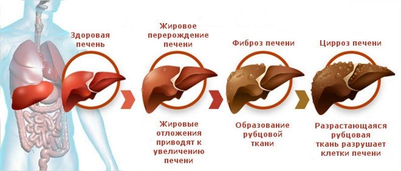 цирроз печени 4 степени сколько живут