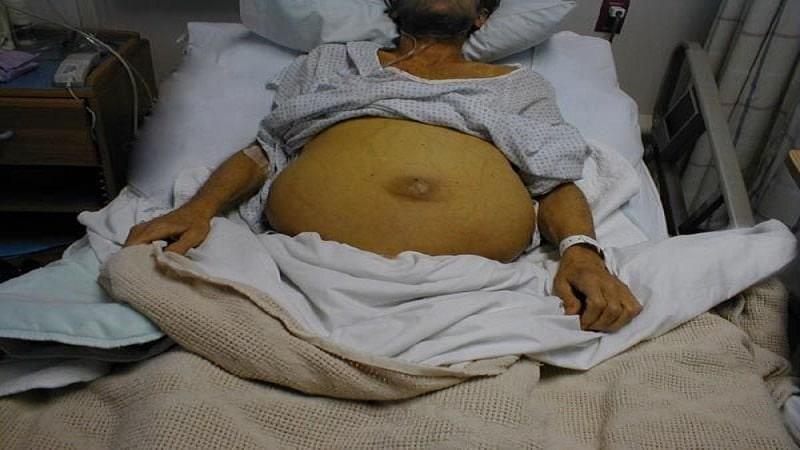 признаки цирроза печени у мужчин на ранних стадиях