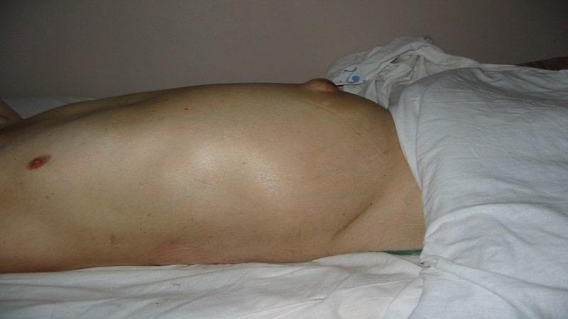 асцит брюшной полости сколько живут люди