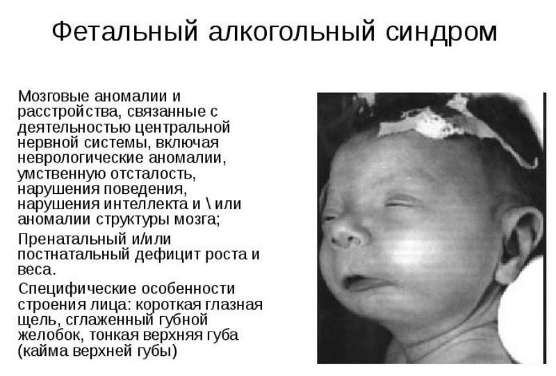 влияет ли алкоголь на зачатие ребенка у мужчин