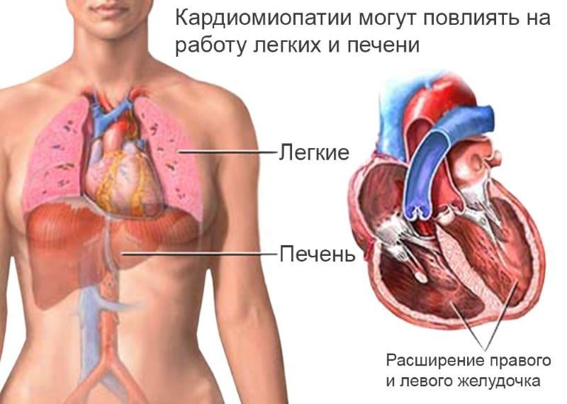 симптомы алкогольной кардиомиопатии