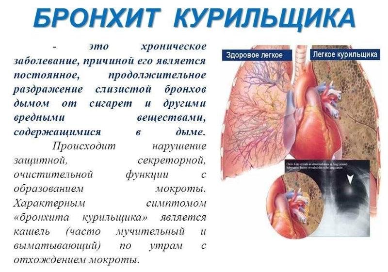 недорогие но эффективные таблетки от кашля курильщика