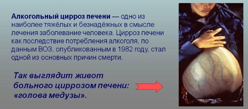 алкогольный цирроз печени код 10 по МКБ