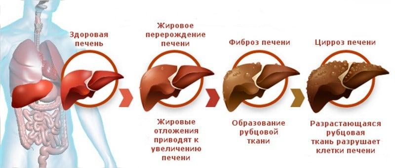цирроз печени по МКБ