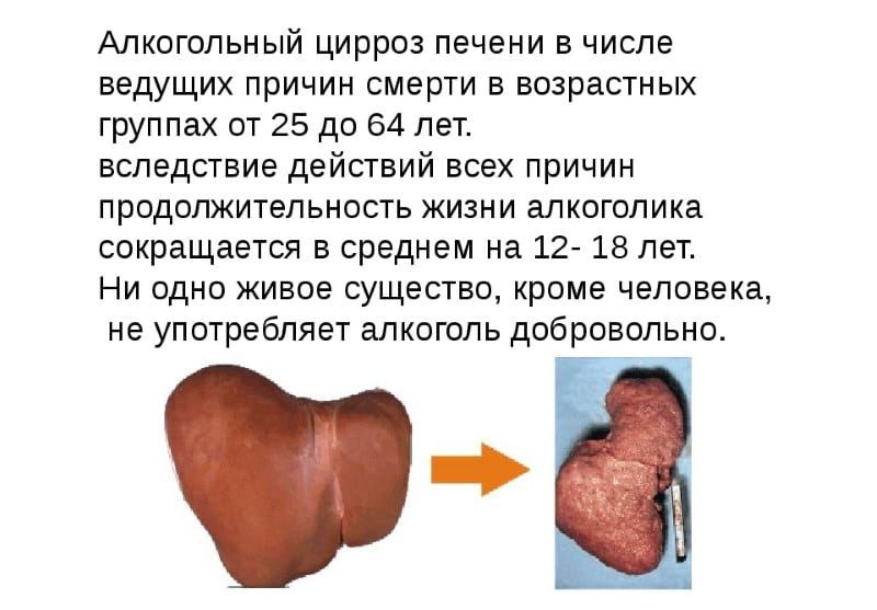 какая классификация у цирроза
