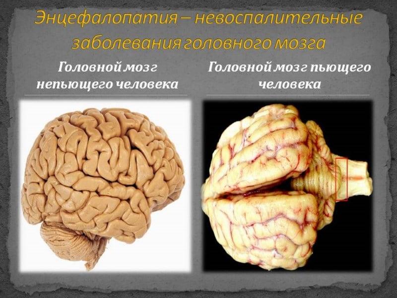 алкогольная токсическая энцефалопатия