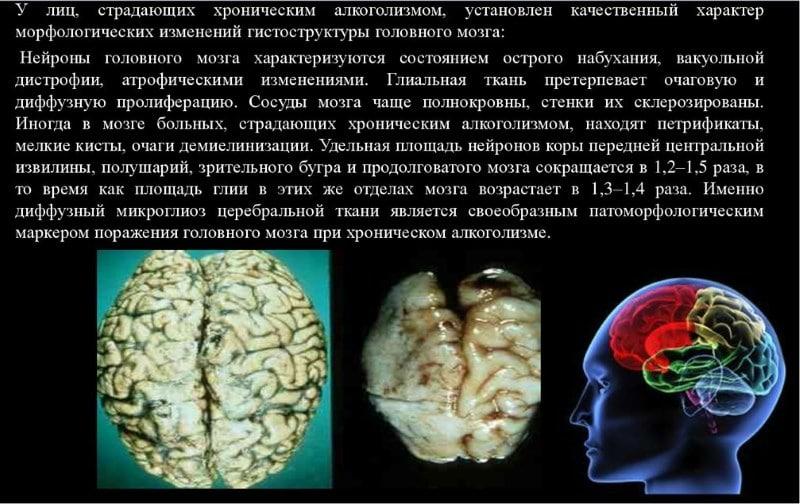 алкогольная энцефалопатия код 10 по МКБ