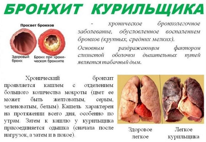 заболевания легких у курильщиков и их симптомы