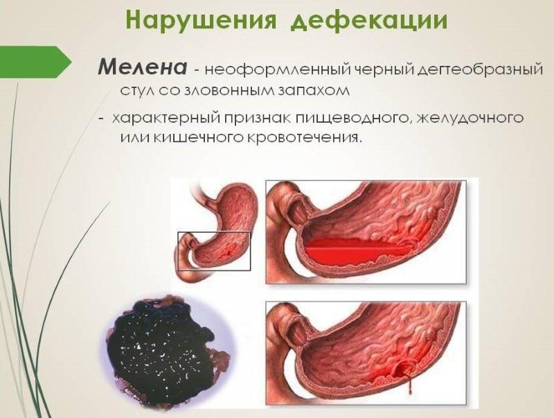 кал черного цвета после алкоголя