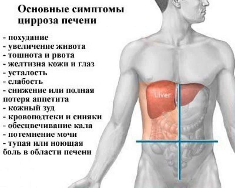 лечится ли цирроз печени или нет