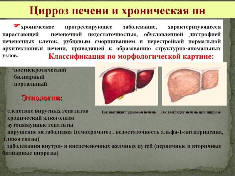 лечится ли цирроз печени