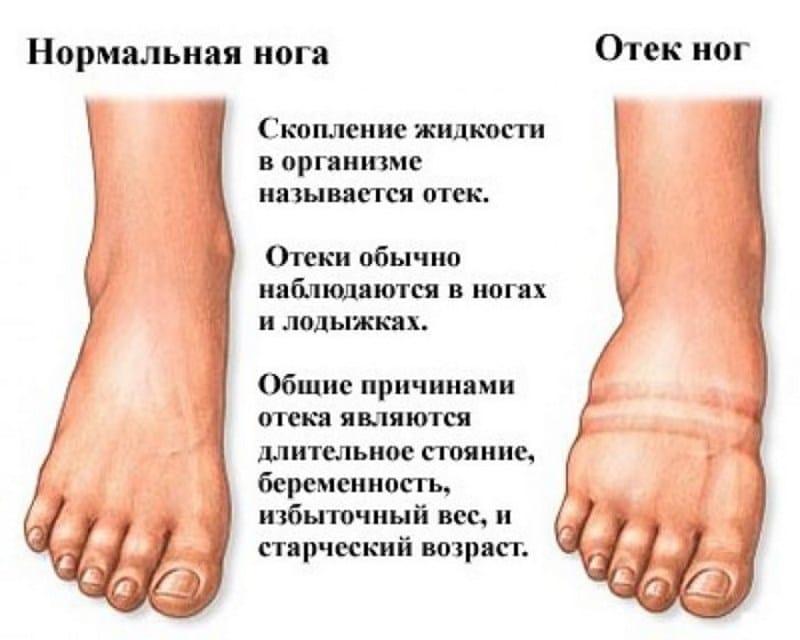 отек ног после алкоголя