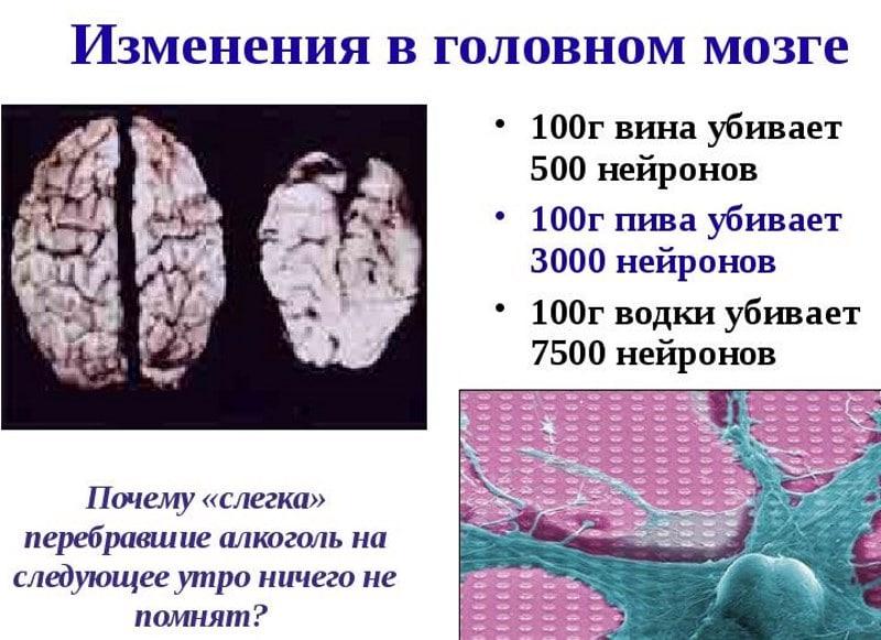 как восстановить память после алкоголя