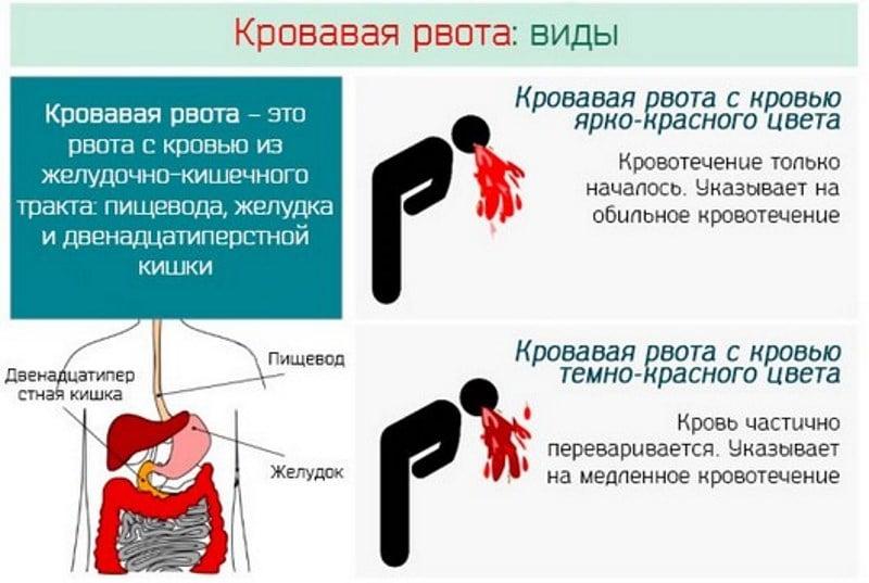 рвет кровью после алкоголя