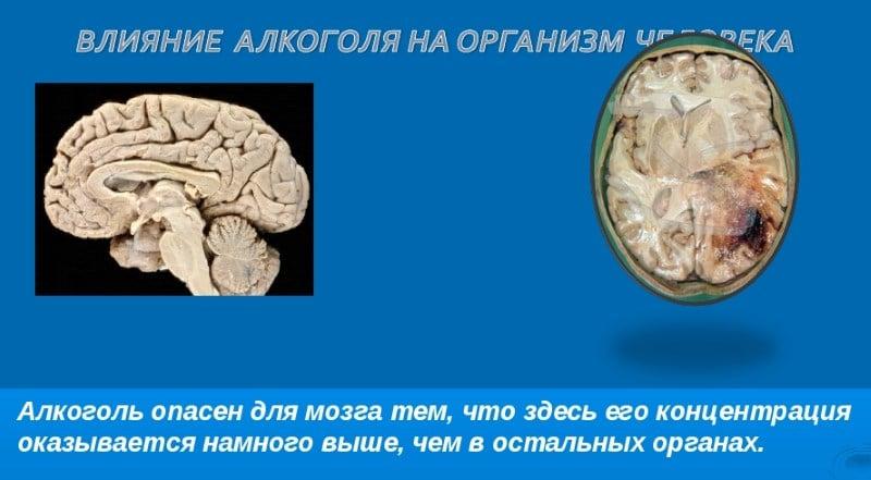 как алкоголь действует на мозг