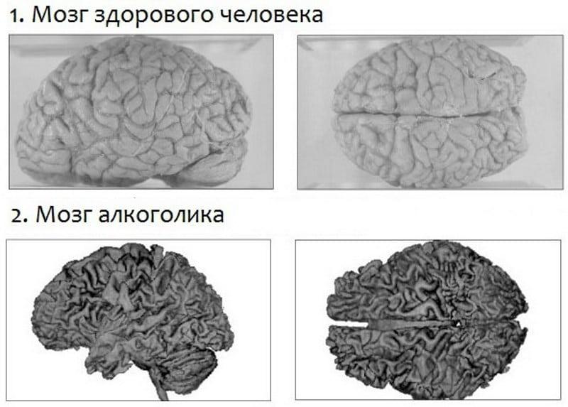 восстановление мозга после отказа от алкоголя