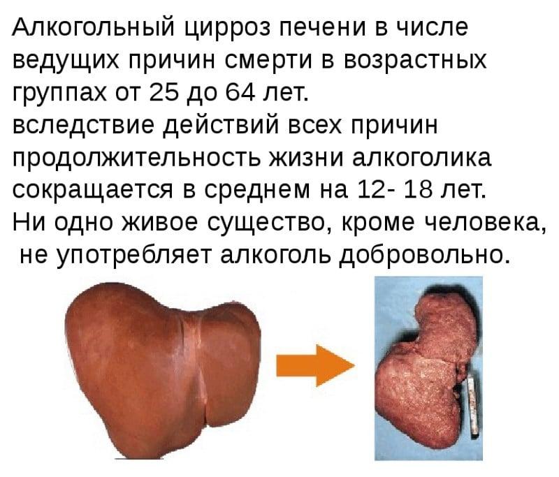 симптомы цирроза печени у мужчин-алкоголиков