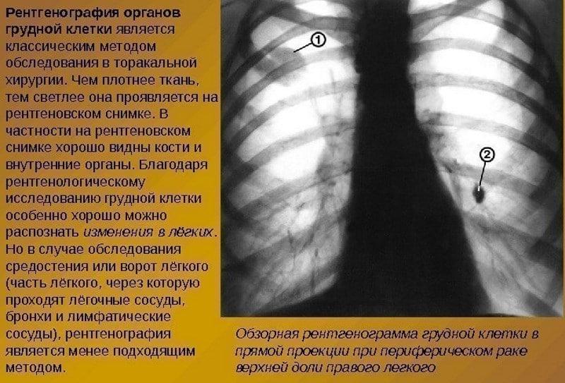 проверить легкие на рак