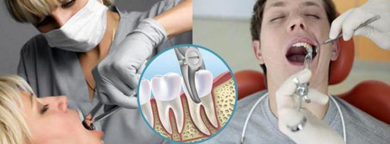Можно ли после удаления зуба употреблять алкоголь