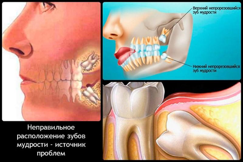 алкоголь после анестезии зуба