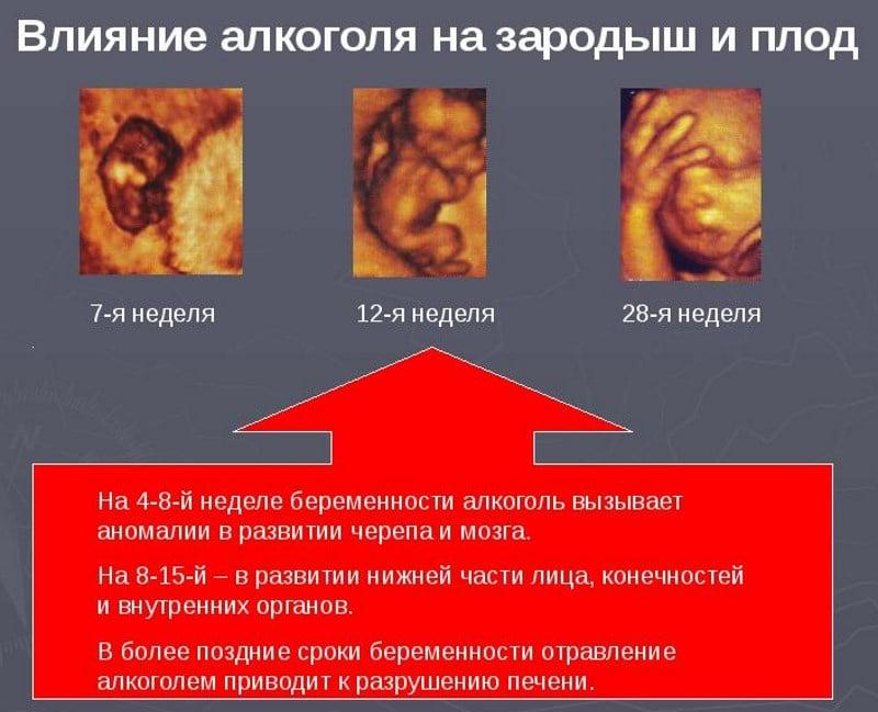 как влияет спиртное на зачатие