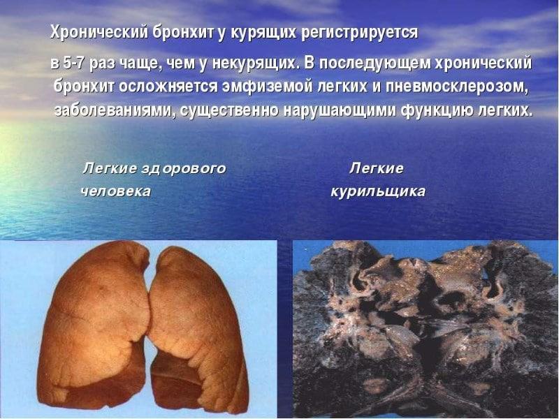 почему болит грудная клетка у бывших курильщиков