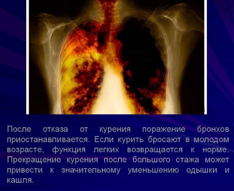 бросил курить и болит грудная клетка