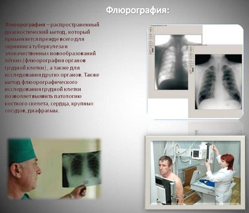 видно ли на флюорографии что человек курит