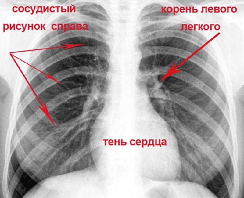 фото флюорографии курильщика и здорового человека