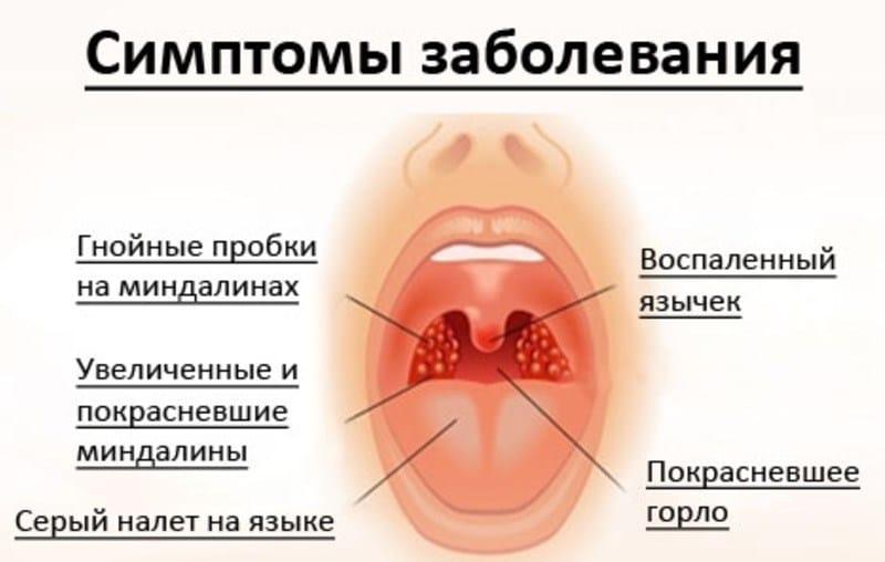 можно ли курить при гнойной ангине