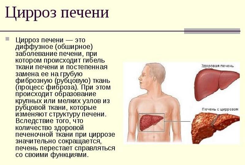 вино и антибиотики совместимость