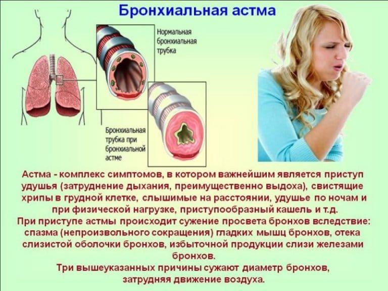 Бронхиальная астма в рб
