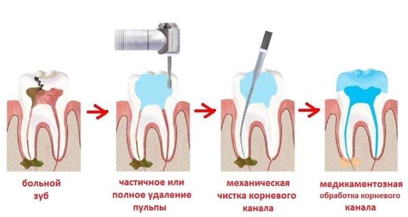 можно ли курить после лечения зуба с анестезией