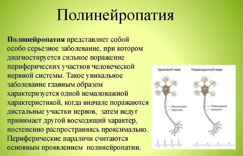полиневрит нижних конечностей