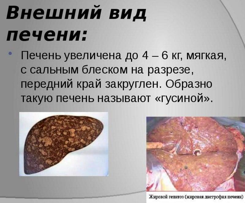 вред алкоголя на печень