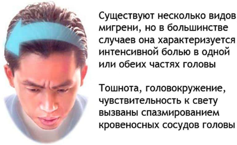 Лучшая работа для мигрени