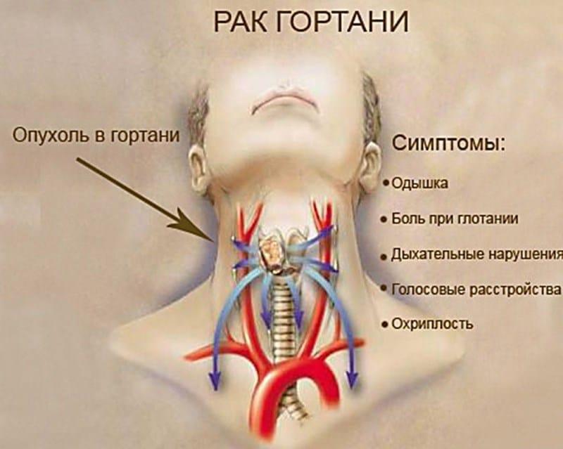 болит горло от курения