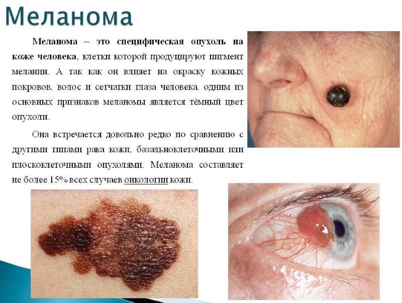 восстановление кожи лица после отказа от курения
