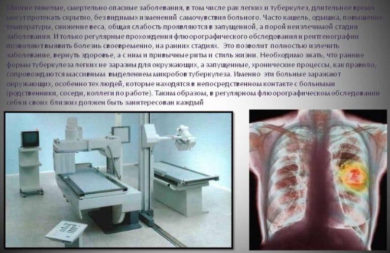 Туберкулез вылечивается полностью