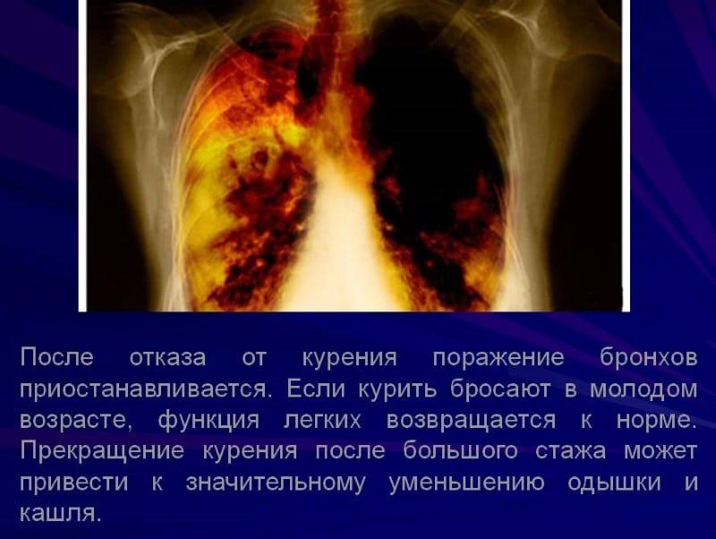 бронхит и сигареты