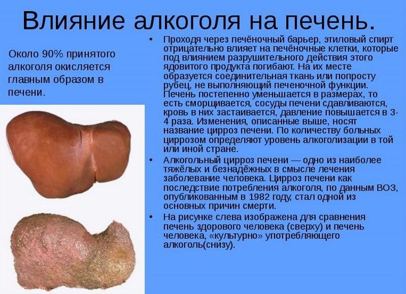 препараты на основе расторопши для лечения печени