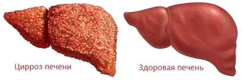 видно ли цирроз печени на УЗИ