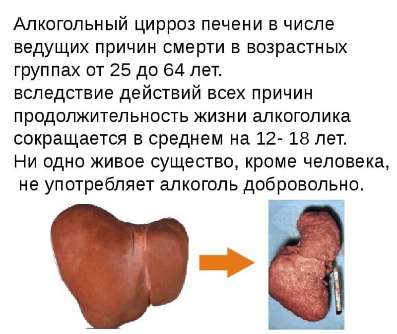 УЗИ печени покажет цирроз печени