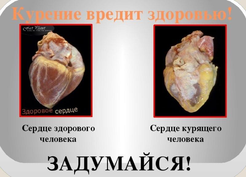 влияние курения на сердце