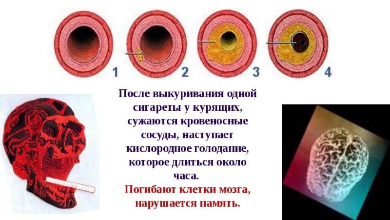 сосуды при курении сужаются или расширяются